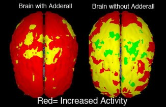 adderall-brain-side-effects1